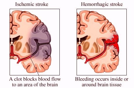 Cerebrovascular Accident or Stroke | Dominica Vibes News