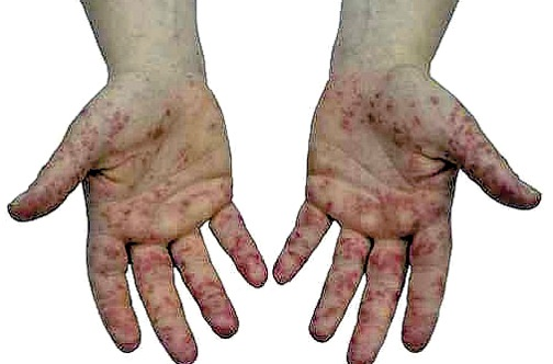 Mouth hand disease pics and foot