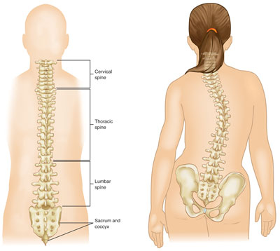 Physiotherapy In Action Idiopathic Scoliosis Dominica